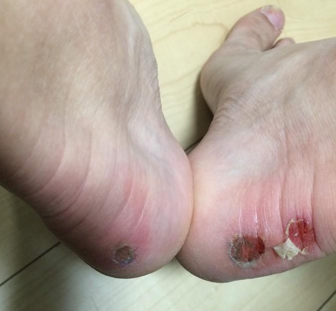 靴擦れがひどくて辛かった